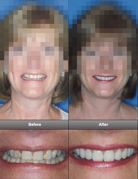 dental-facelift