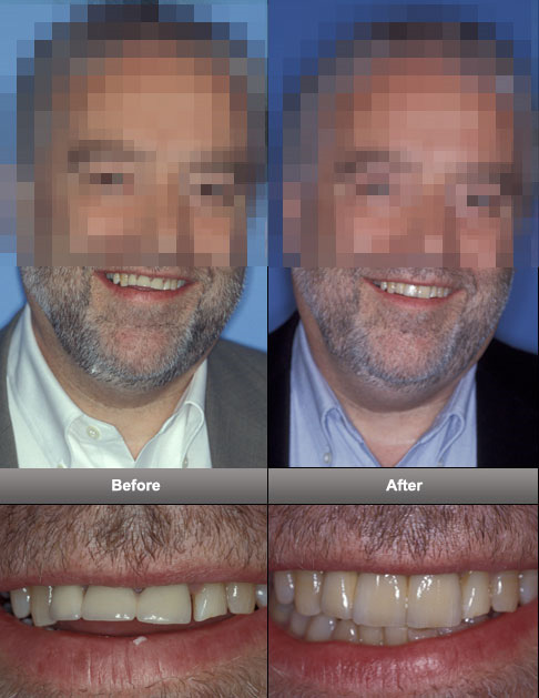 dental-implants-3